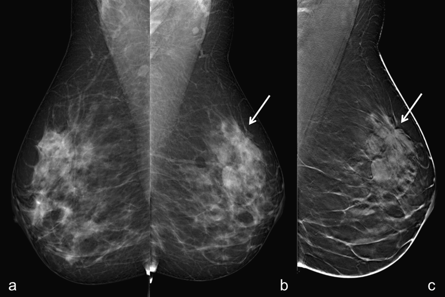 digital breast tomosynthesis in breast imaging Digital breast tomosynthesis (dbt) is a novel imaging technology that captures  three-dimensional (3d) images of the breast dbt can be used.